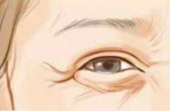 在长沙艺星有哪些祛除皱纹的方法呢?