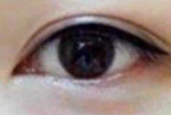 长沙艺星做半永久美瞳线要多少钱呢?