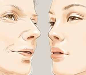 面部除皱哪种方法好