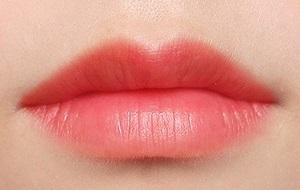 长沙厚唇改薄术你也可以拥有性感美唇