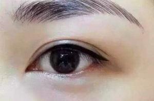 陈明松医生指出美瞳线的优点