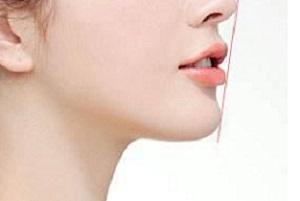 长沙玻尿酸丰下巴有什么优势