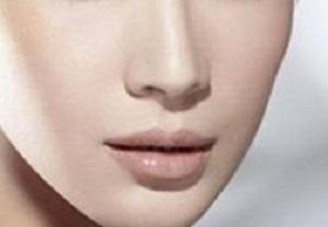 长沙面部吸脂让脸型更加理想