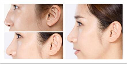 长沙驼峰鼻矫正术需要多少时间恢复