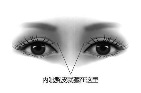 开外眦会把眼睛变大吗