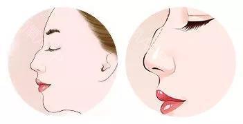 长沙驼峰鼻矫正效果怎么样