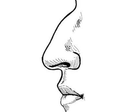 <strong>长沙驼峰鼻矫正后遗症怎么避免</strong>