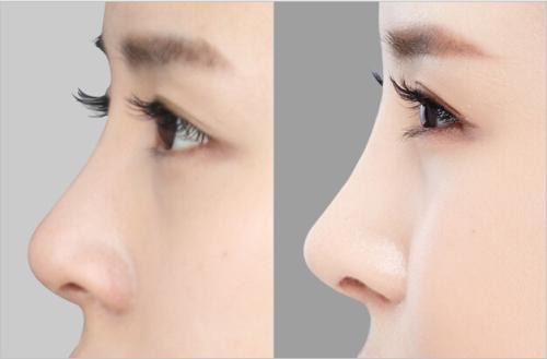 长沙艺星整形隆鼻