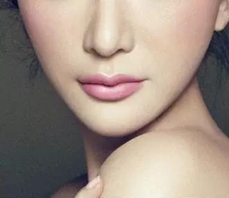 长沙怎么去除脸上的鼻唇沟