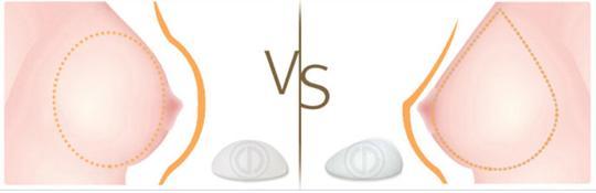 <b>长沙生育后乳房下垂怎么改善</b>