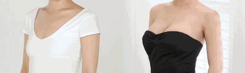 长沙矫正乳房下垂的优势是什么