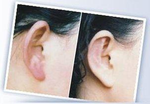 长沙外耳再造的手术费用是多少