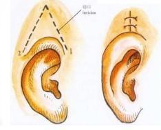 耳廓畸形修复的方法有哪些
