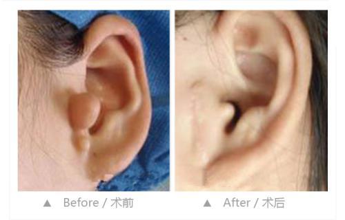 隐耳是如何矫正的