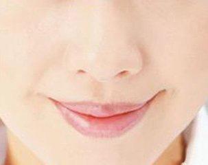 长沙艺星唇部脱毛多少钱