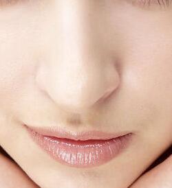 长沙艺星鼻小柱延长术前要注意什么呢