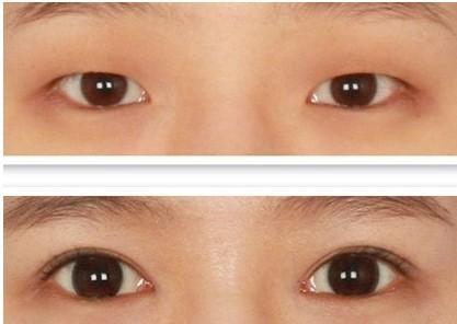 小眼变大后怎么护理