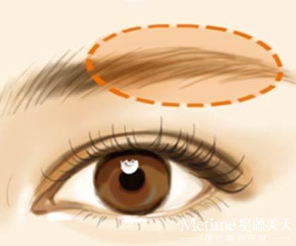 提眉整形术,改善眉毛的不好