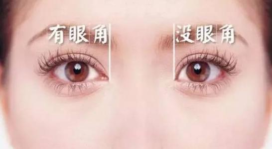 外眦成形手术方法介绍
