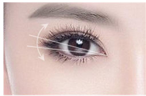 长沙双眼皮修复哪家医院做的好
