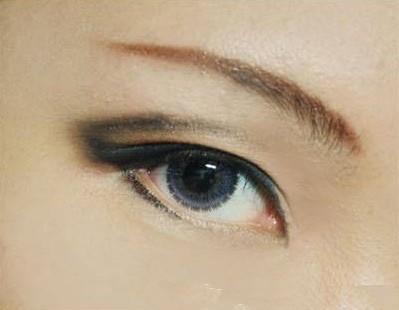 五种双眼皮修复方法
