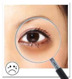 长沙黑眼圈的治疗方法哪种较好?