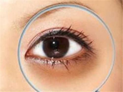 黑眼圈去除手术是怎么做