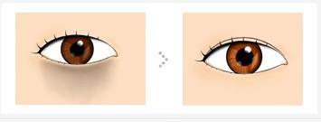 彩光嫩肤祛黑眼圈效果好吗?