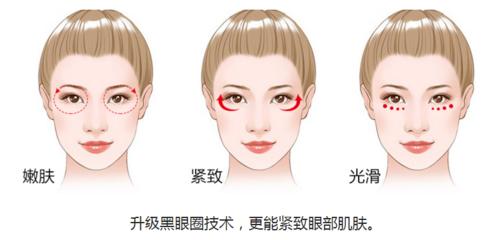 长沙OPT祛黑眼圈效果好吗?