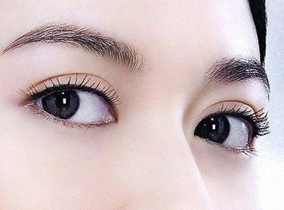 长沙哪种双眼皮手术方式比较好